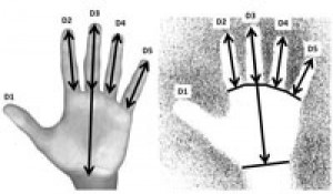 Caption These are images of male and female hand with measurements that determine gender. Credit Dean Snow