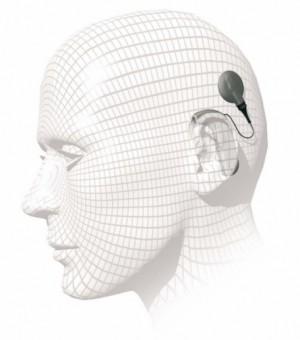 Traditionelt cochlear implantat uden på hovedet.  Foto: Arkiv.