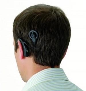 I fremtiden behøver døve med cochlear implant ikke at have knold i nakken. Foto: Cochlear Ltd.