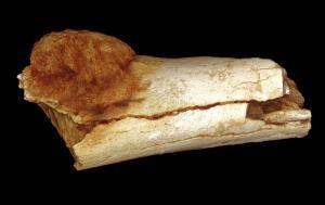 Verdens ældste ondartede kræftsvulst er 1,7 millioner år gammel og den blev næret af stenalderkost. Foto: Patrick Randolph-Quinney